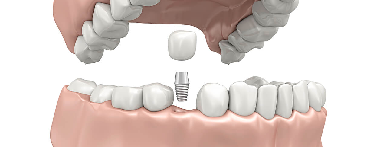 3d image of a tooth implant that screws into a socket